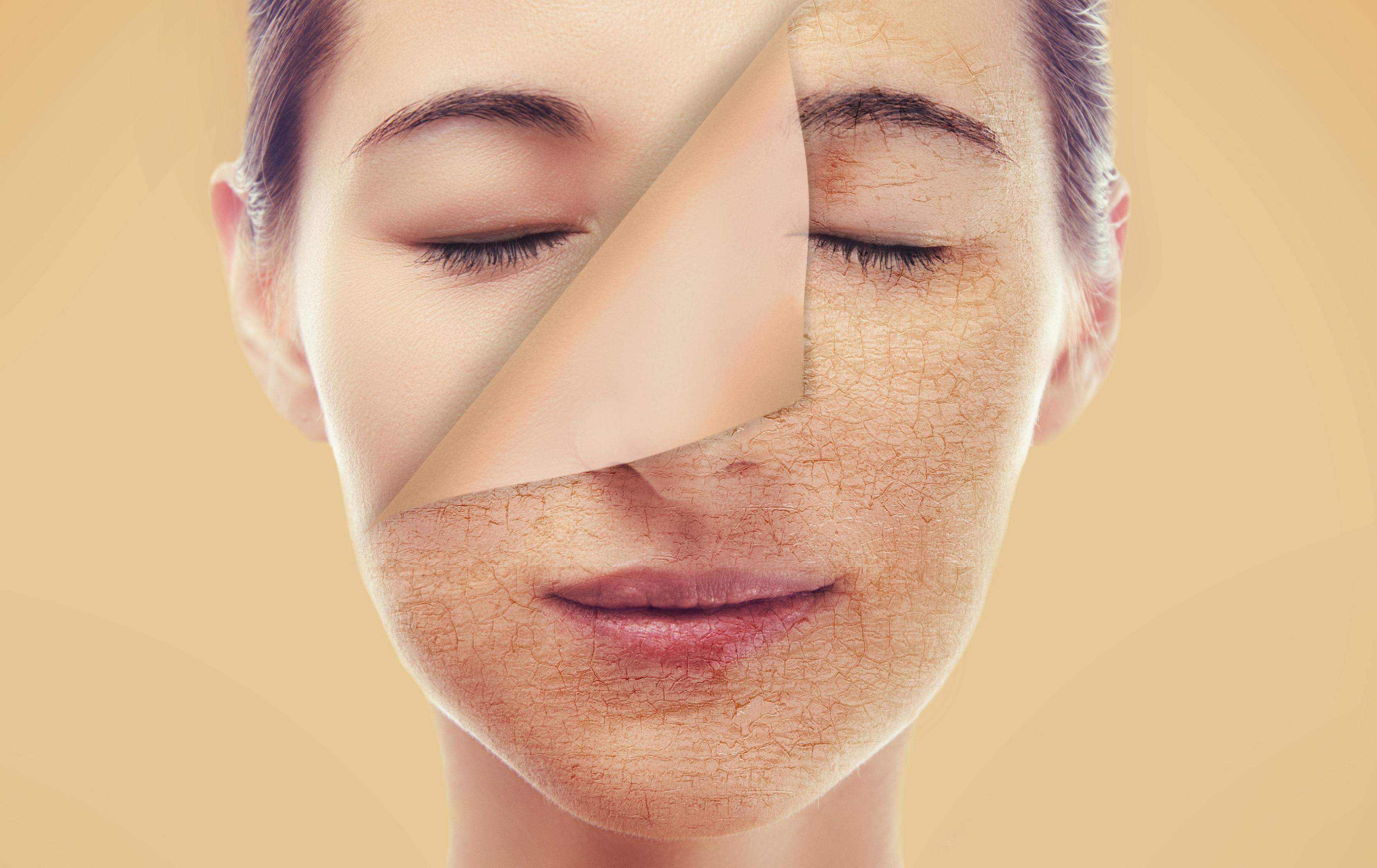 rinnovare-la-pelle-Centro-seb