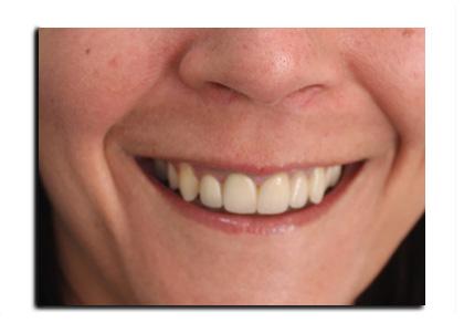 botulino-sorriso-gengivale-dopo