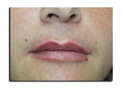 Riempimento Labbra